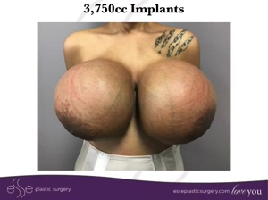 Real life breast expansion